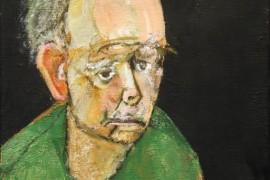 SAD: Broj smrtnih slučajeva povezanih sa Alchajmerovom bolešću sve veći