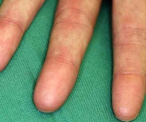 Adermatoglifija – genetski poremećaj ljudi koji su rođeni bez otisaka prstiju