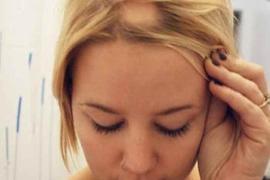 Šta određuje boju kose i zašto kosa sedi