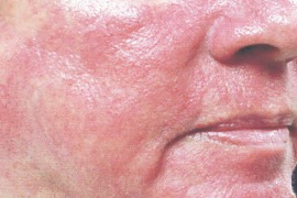Psorijaza – direktni i indirektni troškovi bolesti