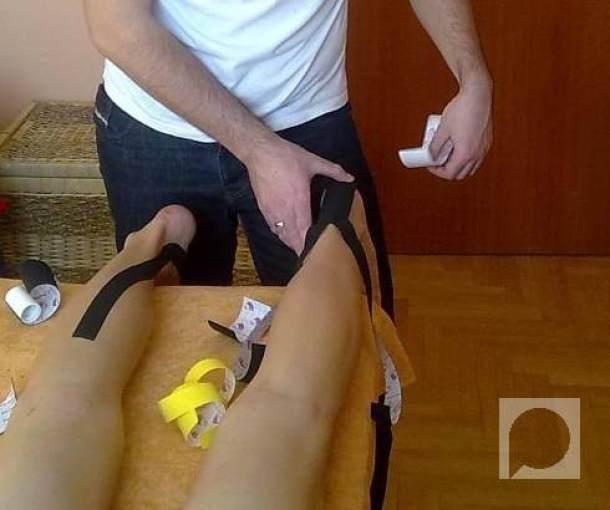 Kinezitejping – efikasna metoda fizioterapije