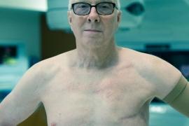 Rak dojke – na grudima muškarca