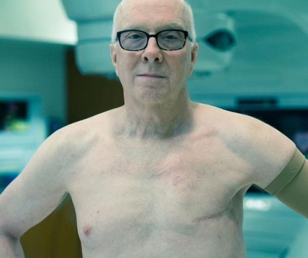 Milioni obolelih od raka bili bi spašeni ulaganjem u radioterapiju