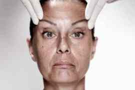 Švajcarska: Opasne i nedozvoljene terapije živim ćelijama
