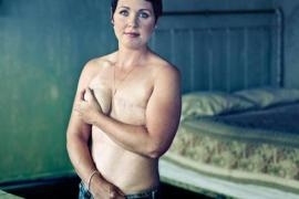 Rizik od raka dojke povezan sa bolestima desni
