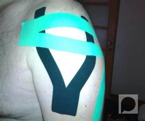 Kinezitejping kod sindroma bolnog ramena