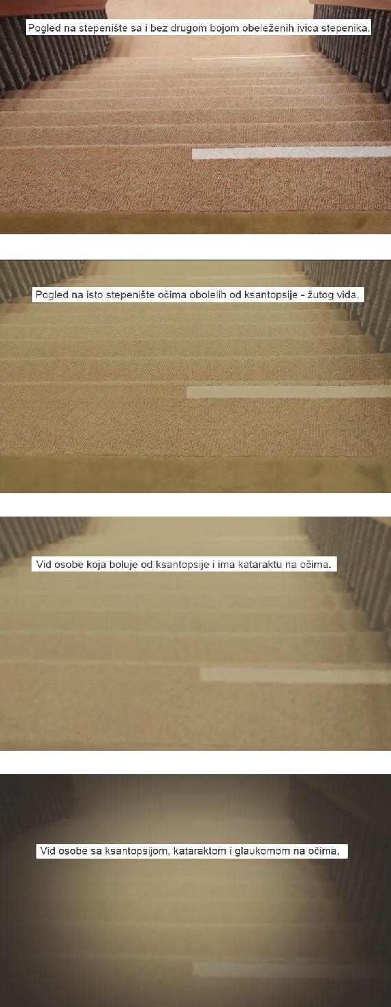 katarakta-glaukom-oci-vid-stepenice