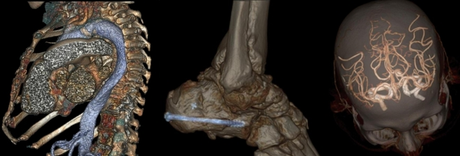ct skener grudni kos glava stopalo
