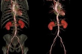 CT skener nove generacije daje neverovatne 3D prikaze (foto galerija)