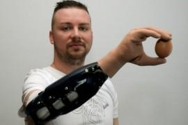 Bionička ruka povezana transplatacijom nerava (video)