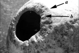 Ruski hirurzi testirali 2500 godina staru operativnu tehniku iz Sibira