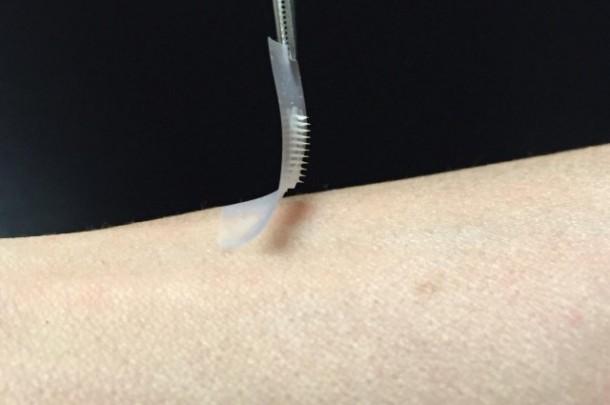 Insulinski flaster za dijabetičare bezbolno kontroliše nivo šećera