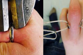 Moderne burme i prstenje – glavobolja za hitnu pomoć