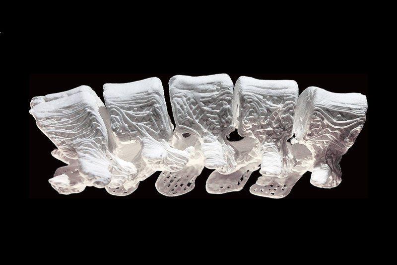 3D štampa pojedinačnih prirodnih kostiju prema potrebi
