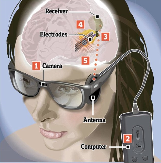 Sistem kamere, predajnika i stimulatora u mozgu koji vraća osnovni vid slepima u dovoljnoj meri da vide boje i oblike