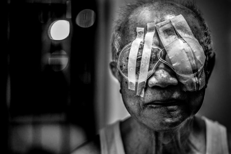 Namirnice koje sprečavaju pojavu katarakte